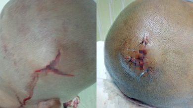 Photo of Pekerja Indonesia tertekan dipukul majikan