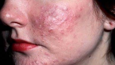 Photo of Sembilan produk cantikkan muka ada kimia berbahaya